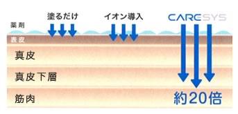イオン導入の約20倍の量を導入できます