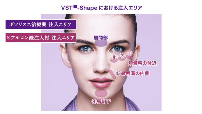 VST-Shapeにおける注入エリア