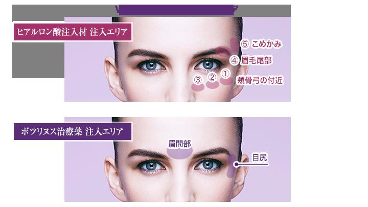 VST-Eyeにおける注入エリア